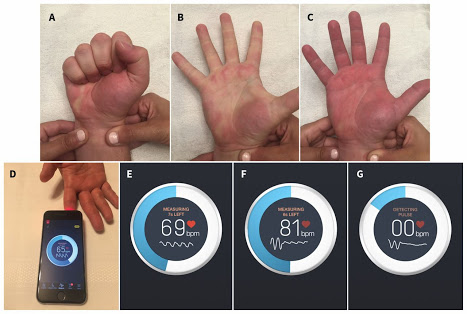 تطبيق جديد لقياس مدى سلامة شرايين اليد