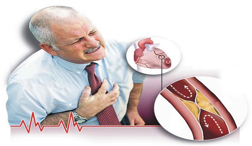 انخفاض الأكسجين في الدم
