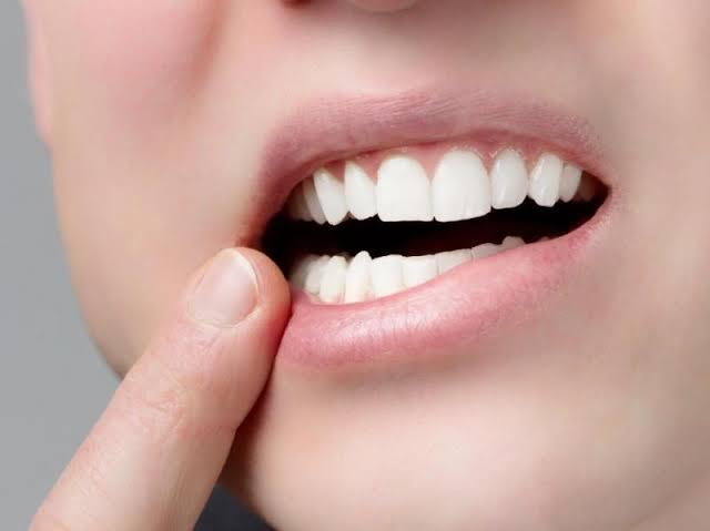قروح الفم